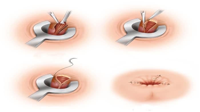 جراحی بواسیر به روش بسته