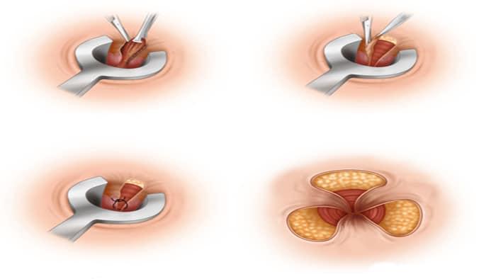 جراحی بواسیر به روش باز