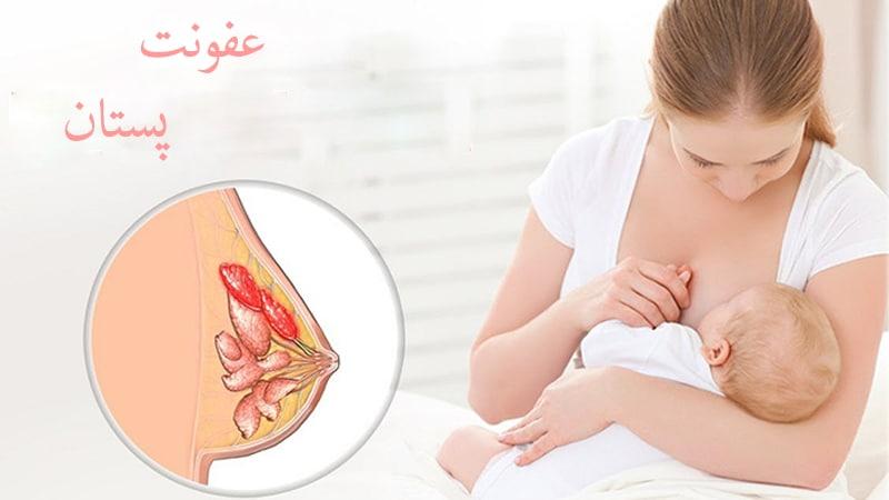 عفونت پستان