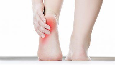 التهاب پاشنه پا