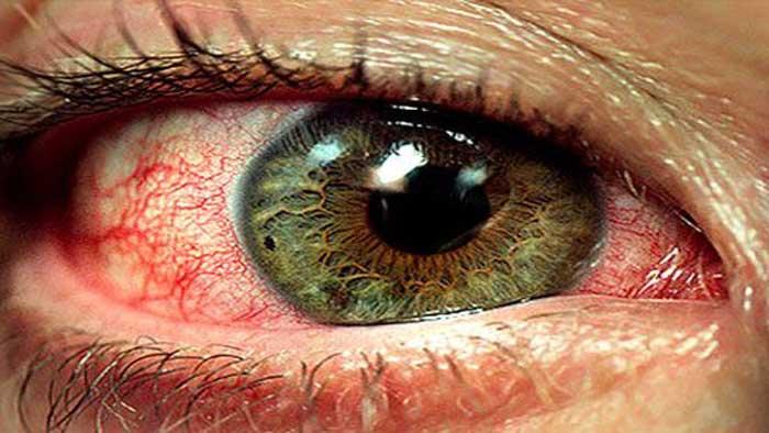علائمی چشمی بهجت