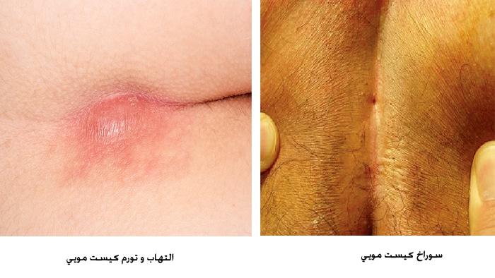 عکس کیست مویی و التهاب آن