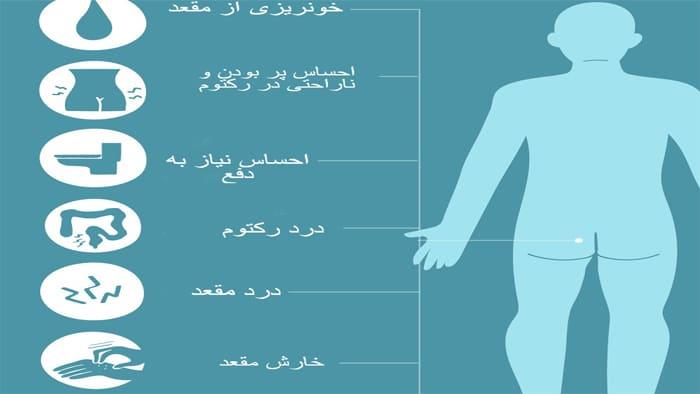 علائم بواسیر داخلی