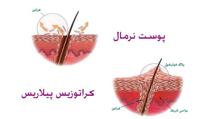 علت بیماری پوست مرغی