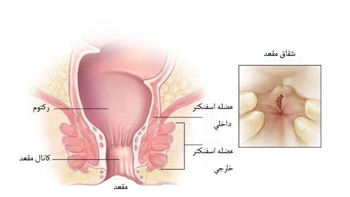 بیماری شقاق در بارداری