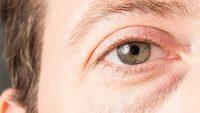 علت پف زیر چشم و روشهای برای رفع آن