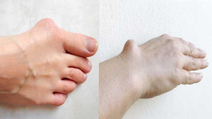 علائم سرطان استخوان
