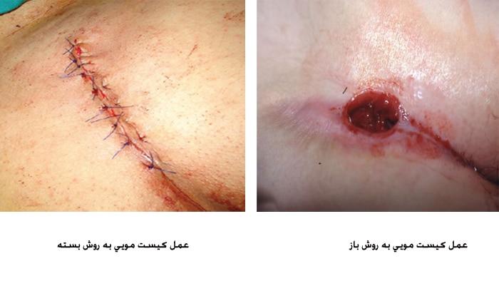 عکس انواع روش های جراحی باز و بسته کیست مویی