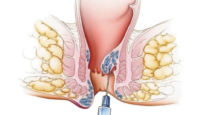 درمان بواسیر به روش اسکلروتراپی