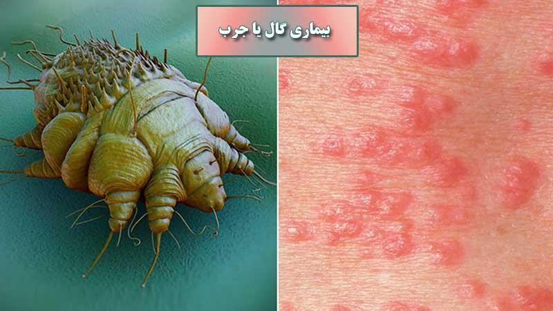 علائم بیماری گال، نحوه درمان و روشهای انتقال بیماری گال یا جرب در زنان و مردان
