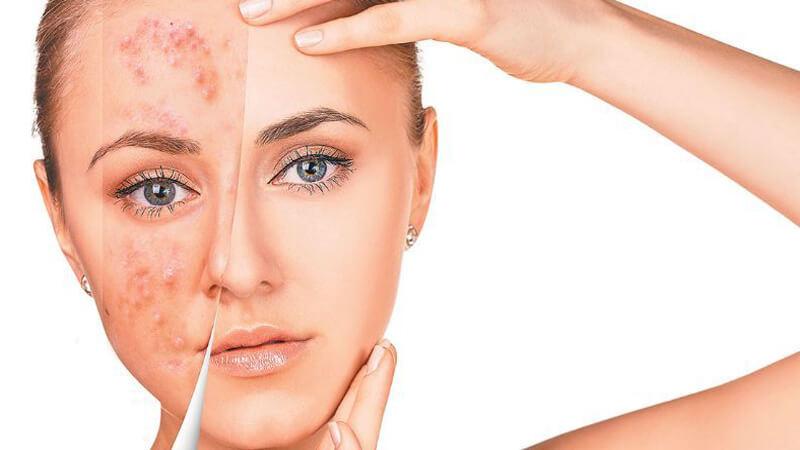 17 روش قطعی و معجزه گر برای درمان جوش صورت در سریع ترین زمان