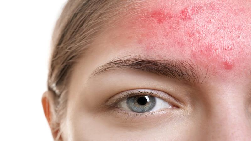 درمان لکه های قرمز روی پوست یا بیماری روزاسه چیست؟