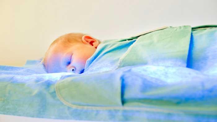 درمان زردی نوزاد