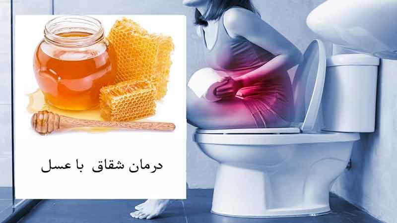 درمان شقاق مقعدی با عسل در طب سنتی