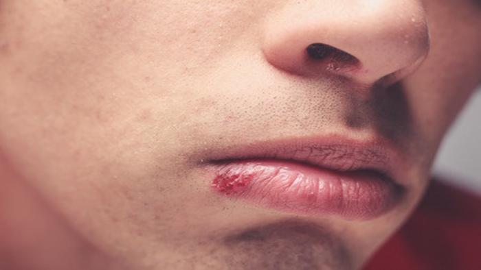 علائم آفت دهان