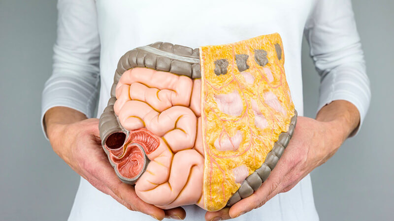 سرطان روده ، علت و علائم ابتلا و معرفی روش های درمان و پیشگیری