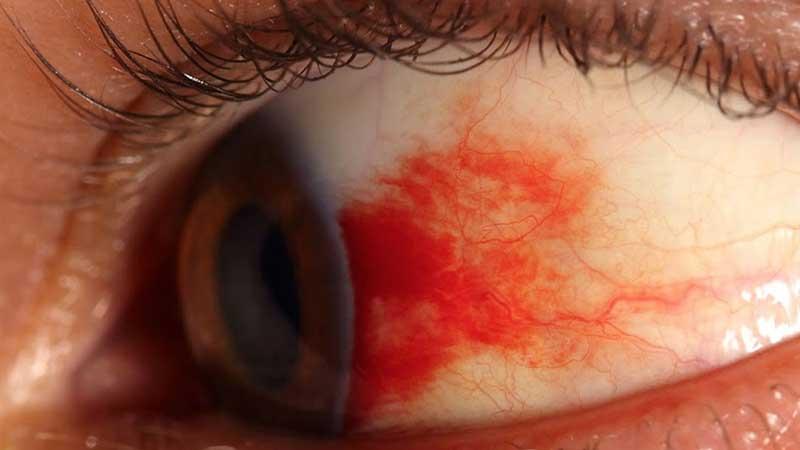 رتینوپاتی دیابتی: صدمه دیدن رگ های کوچک چشم در بیماران دیابتی