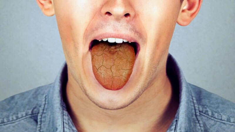 علت خشکی دهان و معرفی 17 نسخه فوق العاده برای درمان آن