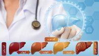 بررسی علت، علائم، پیشگیری و روش های درمان کبد چرب