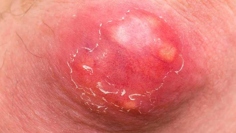 بیماری دردناک کورک و شناخت علائم و روش های درمان آن