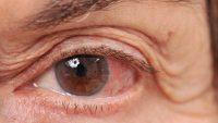 آب سیاه چشم : بررسی بیماری در شرایط حاد و مزمن