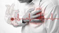 سکته قلبی چگونه رخ می دهد؟ بررسی علائم ونحوه درمان آن