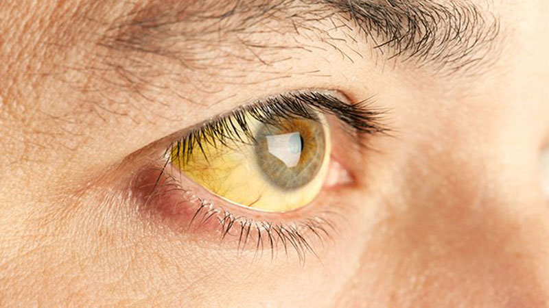 بیماری هپاتیت ؛ آشنایی با انواع، علائم، راه های انتقال و روش های درمان
