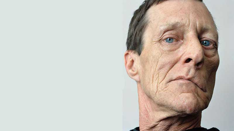 فلج صورت، علائم ونشانه ها و نحوه درمان آن