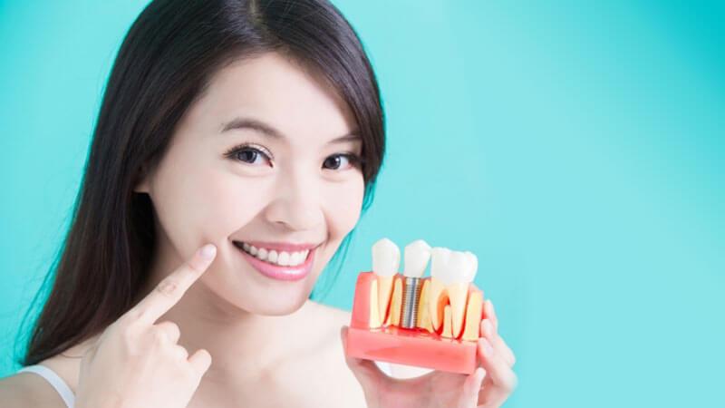 ایمپلنت چگونه انجام می شود؟ آشنایی با مراحل و هزینه کاشت دندان