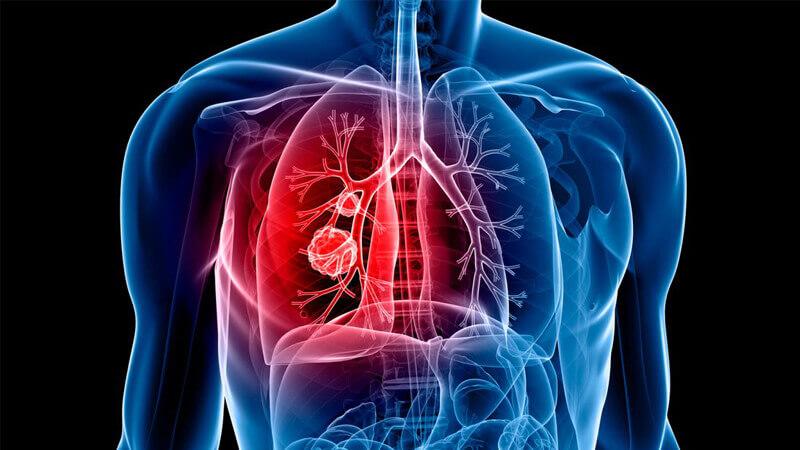 سرطان ریه چیست ؟ علائم، علت و راهکار های پیشگیری و درمان این بیماری