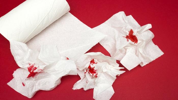 مشاهده خون از علائم بواسیر یا هموروئید