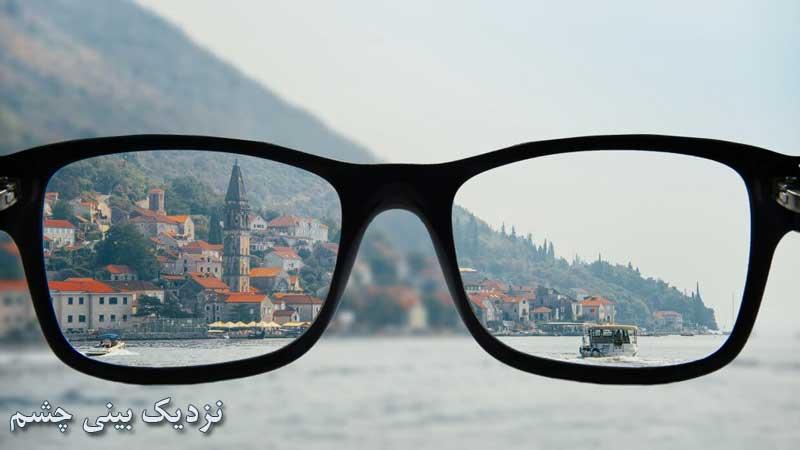 علائم و علت نزدیک بینی چشم و روش درمان