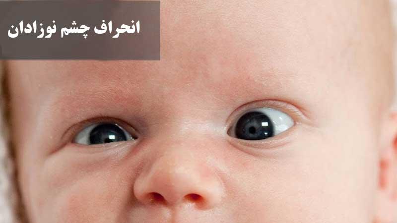انحراف چشم نوزادان ؛ علت، علائم، تشخیص و درمان