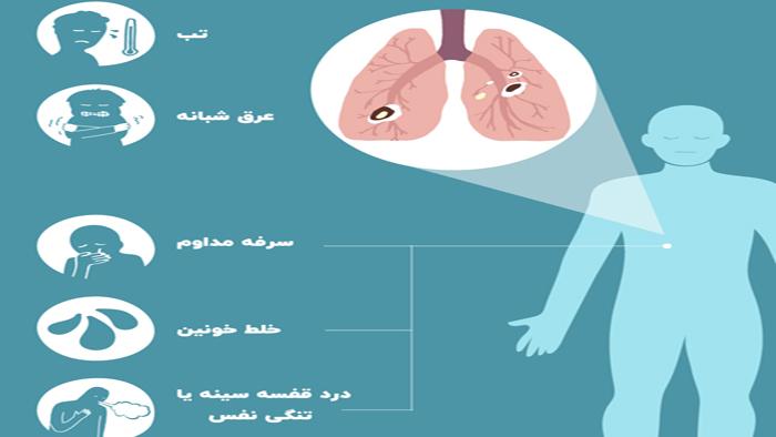 علائم بیماری سل