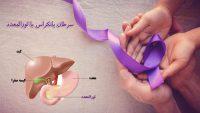 سرطان لوزالمعده یا پانکراس ، بیماری نادر اما خطرناک