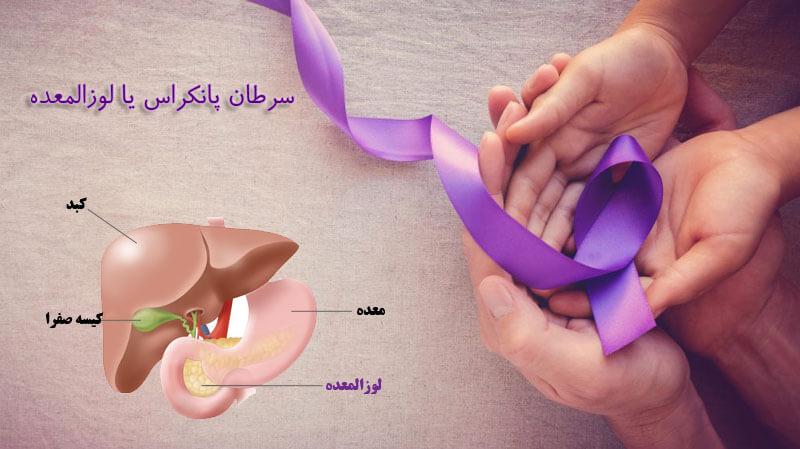 سرطان لوزالمعده یا پانکراس، بیماری نادر اما خطرناک