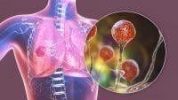 علائم عفونت قارچ سیاه در بدن، عوارض و نحوه انتقال
