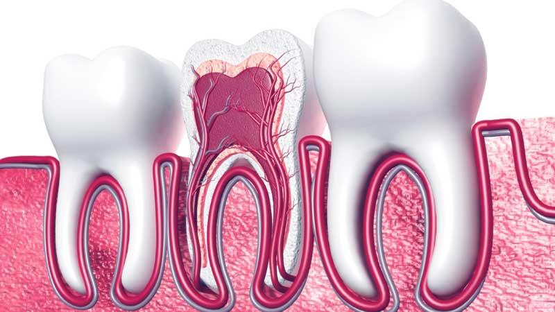 عصب کشی دندان : مراقبت ،درد قبل و بعد از عصب کشی و هزینه آن