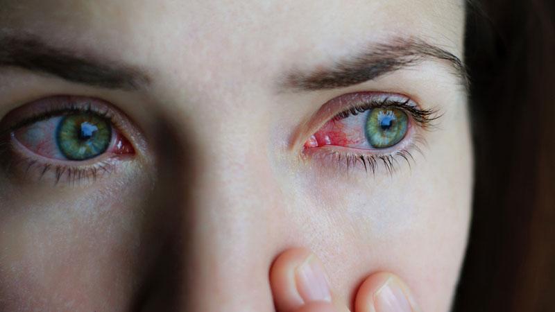 خراش قرنیه و زخم قرنیه ، علل ایجاد و روش درمان