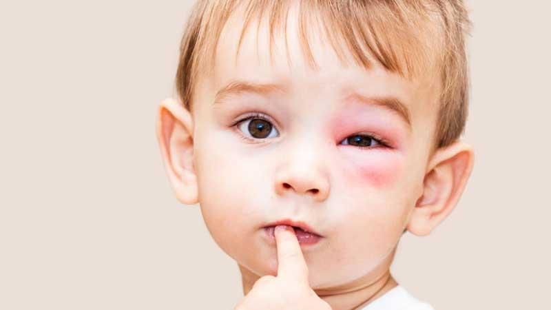 حساسیت به نیش زنبور و راه های فوری پیشگیری از حساسیت های شدید