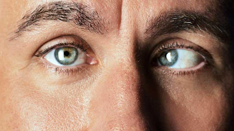 آشنایی با انحراف چشم و روش درمان آن