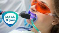 معرفی روش های مختلف سفید کردن دندان، مزایا، معایب و هزینه هر یک