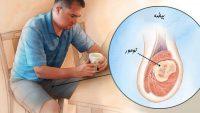 علت و علائم سرطان بیضه ، تشخیص بیماری و روش های درمان آن