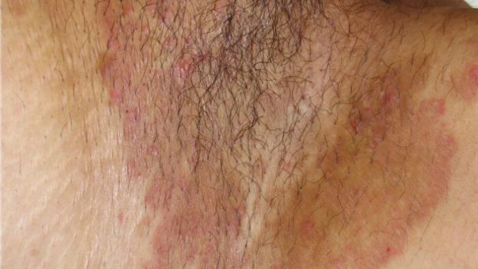 عفونت کشاله ران