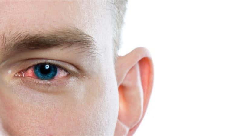 علائم عفونت چشم و درمان خانگی آن