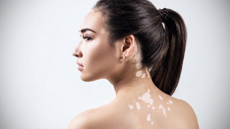 علل و علائم بروز لک و پیس ( ویتیلیگو ) و روش درمان آن