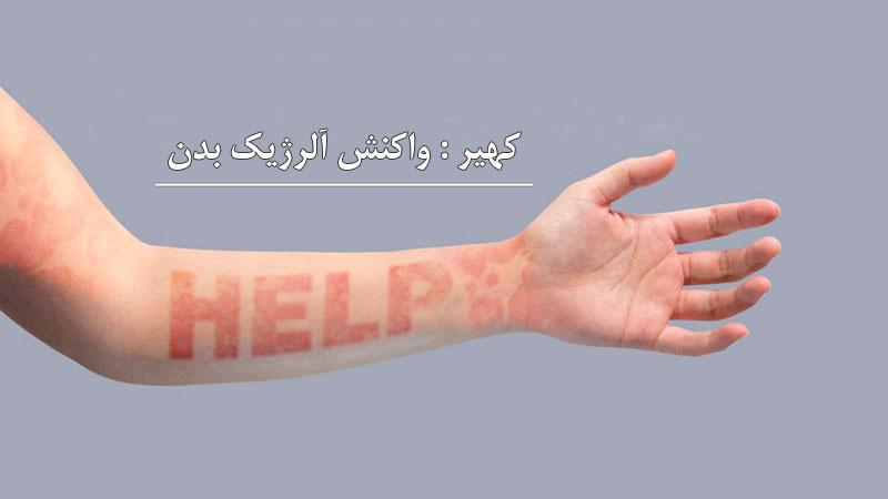 کهیر: واکنش آلرژیک و آزاردهنده ی بدن