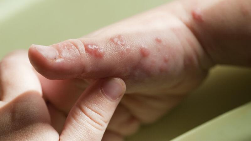 بیماری زونا چیست و چه درمانی دارد ؟ علائم این بیماری چیست ؟ آیا زونا واگیر دارد؟